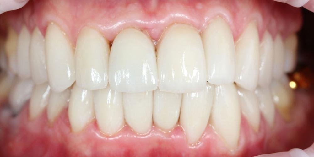 Керамические виниры на передние зубы