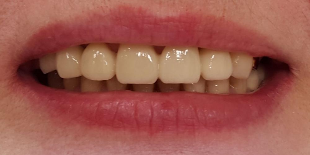Коронка из диоксида циркония на передний зуб