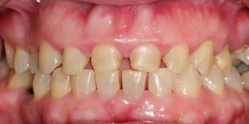 Установка виниров при патологической стираемости зубов фото до лечения