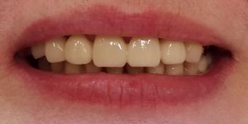 Коронка из диоксида циркония на передний зуб фото после лечения