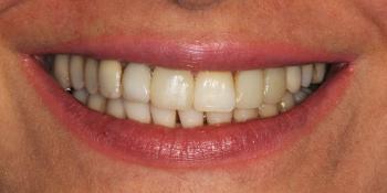 Установка виниров на передние зубы фото до лечения