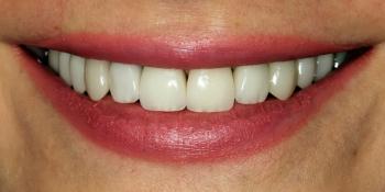 Установка виниров на передние зубы фото после лечения