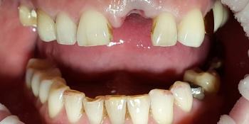 Коронка из диоксида циркония на передний зуб фото до лечения