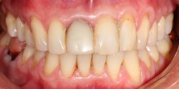 Керамические виниры на передние зубы фото до лечения
